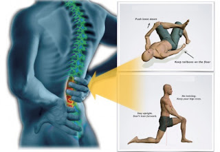 How to Solve Back Pain back pain