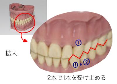 歯科矯正の画像 ©さんがつの歯科矯正を始めます