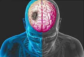 Cari Obat Alternatif Stroke Masih Ringan, apakah stroke bisa sembuh total?, Cara Mengobati Stroke Ringan Bisa Sembuh Total