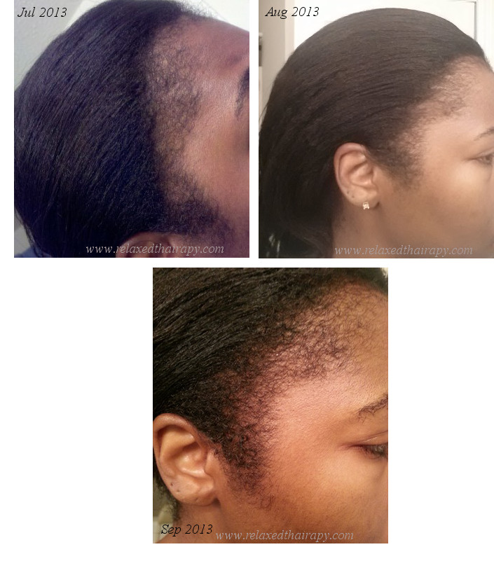 Repairing thinning edges can be quite a challenge. Here are some tips for repairing your edges and getting back on track...relaxed hair...natural hair. relaxedthairapy.com