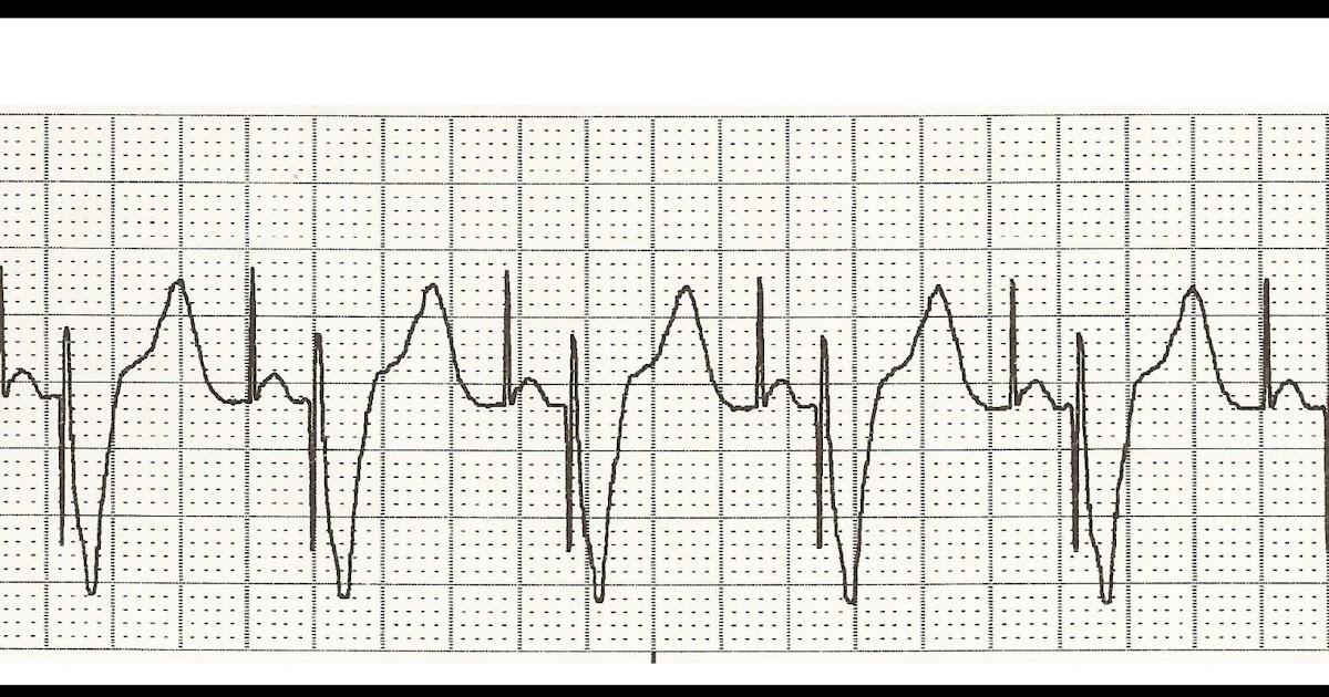 Float Nurse: EKG Rhythm Strip Quiz 155