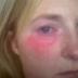 Conoce el caso de la mujer alérgica al agua