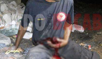 Resultado de imagem para Homem é ferido a faca e fica com parte do intestino exposto em Trizidela do Vale