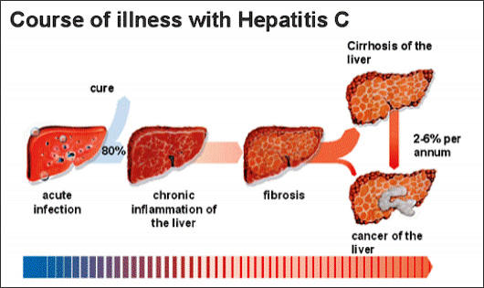 Course Of Illness With Hepatitic C
