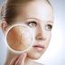 Dermatology Excision CPT Codes