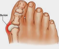 Can rheumatoid arthritis cause foot pain