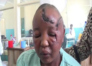 Kenyan man attacks his wife with knife for not giving him children