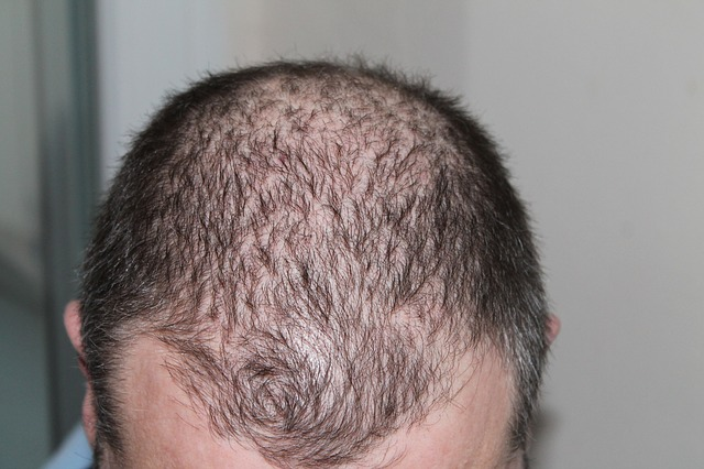 Hair loss: 3 forms, 7 causes + 9 measures for alopecia