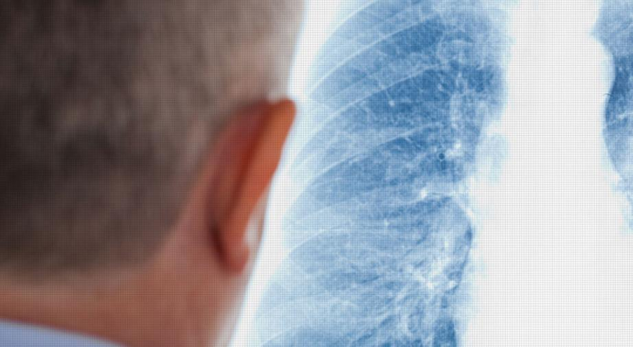 Stage 3 Inoperable Lung Cancer Life Expectancy