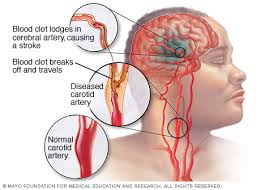Penyakit Stroke dan Cara Pencegahannya