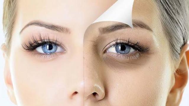 Cara menghilangkan mata lebab