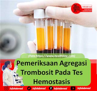 Agregasi Trombosit,agregasi trombosit adalah pdf,agregasi trombosit rendah,agregasi trombosit meningkat,agregasi trombosit pdf,agregasi trombosit artinya,agregasi trombosit pada ibu hamil,agregasi trombosit normal,agregasi trombosit adp,agregasi trombosit adp 10,agregasi trombosit tinggi,agregasi trombosit disebabkan oleh,agregasi trombosit in english,agregasi trombosit tinggi hiperagregasi,agregasi trombosit untuk apa,agregasi trombosit adp 2.0 um,agregasi trombosit adalah,agregasi trombosit adp 2,agregasi platelet artinya,normo agregasi trombosit adalah,agregasi trombosit meningkat artinya,agregasi trombosit menurun artinya,hiperagregasi trombosit adalah,arti agregasi trombosit meningkat,agregasi platelet adalah,agregasi trombosit rendah artinya,pemeriksaan agregasi trombosit adalah,pengertian agregasi trombosit adalah,bahaya agregasi trombosit meningkat,agregasi trombosit cenderung meningkat,cek agregasi trombosit