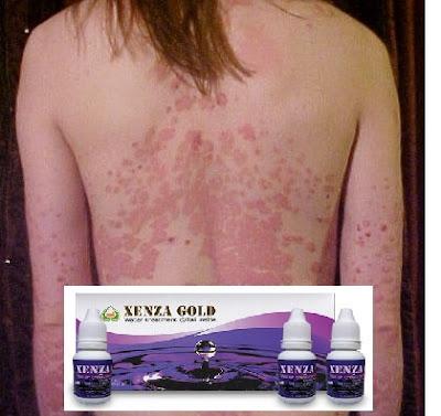 √ Xenza Gold untuk Psoriasis ✅ Xenza Gold Original ⭐ Herballove 👉 WA 081327570786