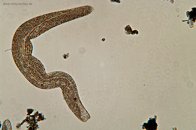 Trichinella Worm