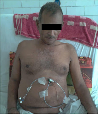 image-of-patient-with-pigtail-catheter
