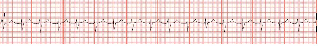 Float Nurse: EKG Rhythm Strips 14: Junctional Rhythms
