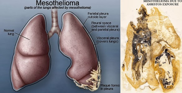 mesotheliomamesothelioma what is mesothelioma? mesothelioma is a underdone growth that act on the thin caul champion several of the corporation\u0027s most important organs,