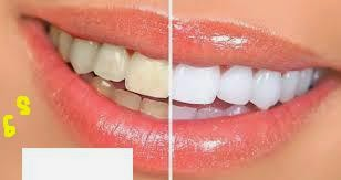 Cara Sehat Menghilangkan Kuning Pada Gigi