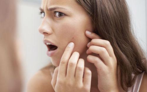 acne, alimentos acne, curar acne
