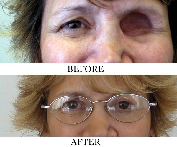 Знакомства для девушек с глазным протезом