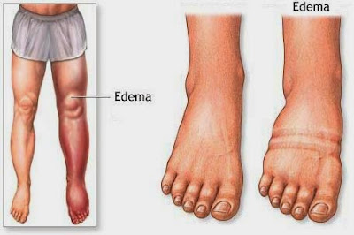 DIET TREATMENT TO ALLEVIATE EDEMA | Unique Natural Fitness Tips