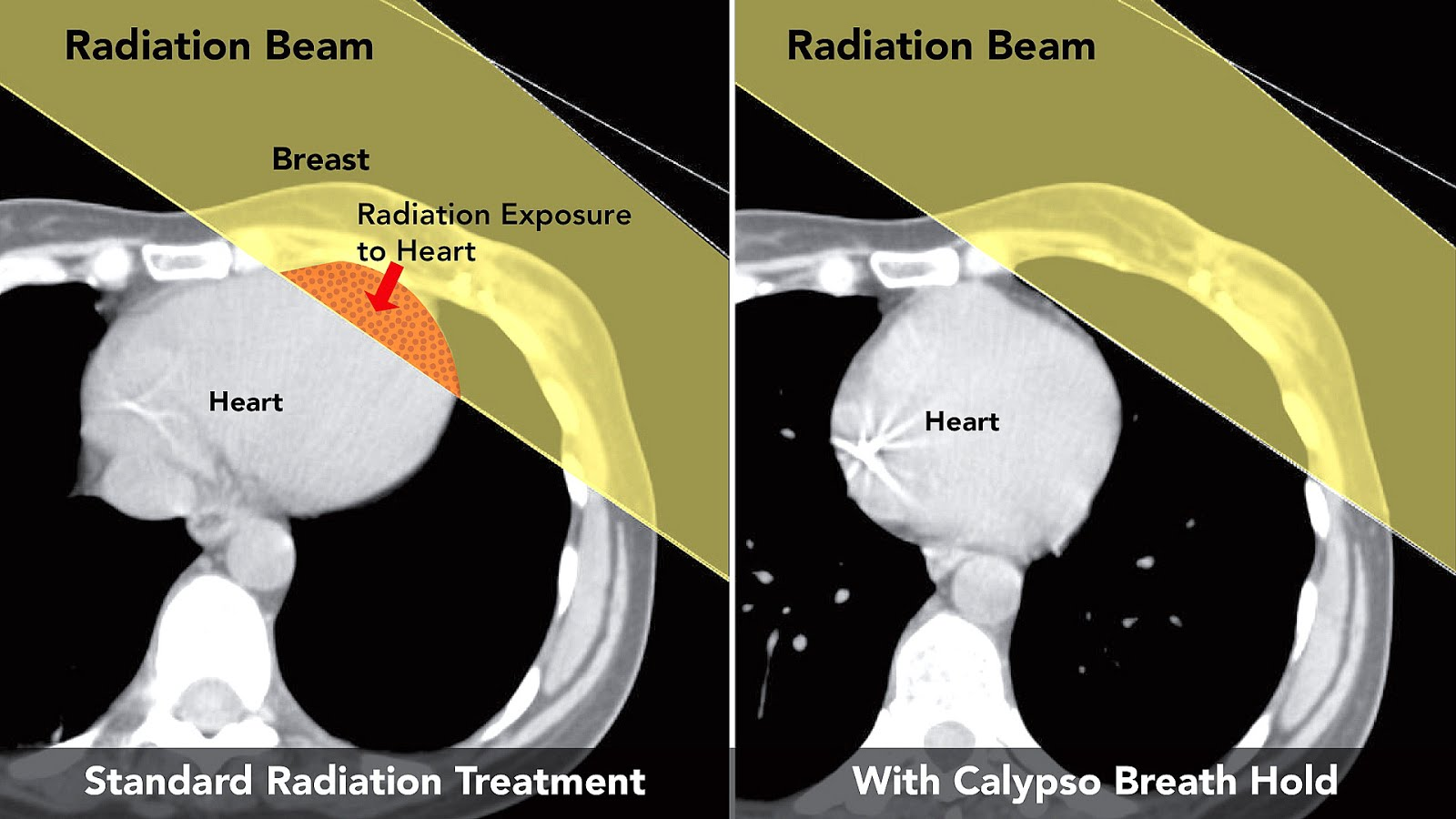 Radiation Therapy Breast Cancer Side Effects