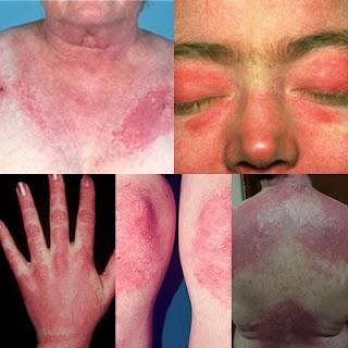 Inilah Cara Mengobati Dermatomiositis Secara Alami Dengan Cepat