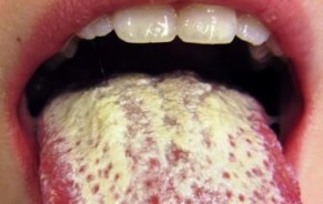 information about candida