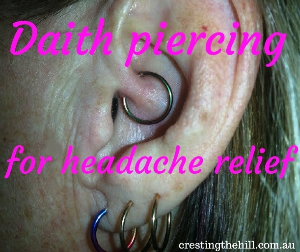 a report on how daith piercing is working for my chronic headaches