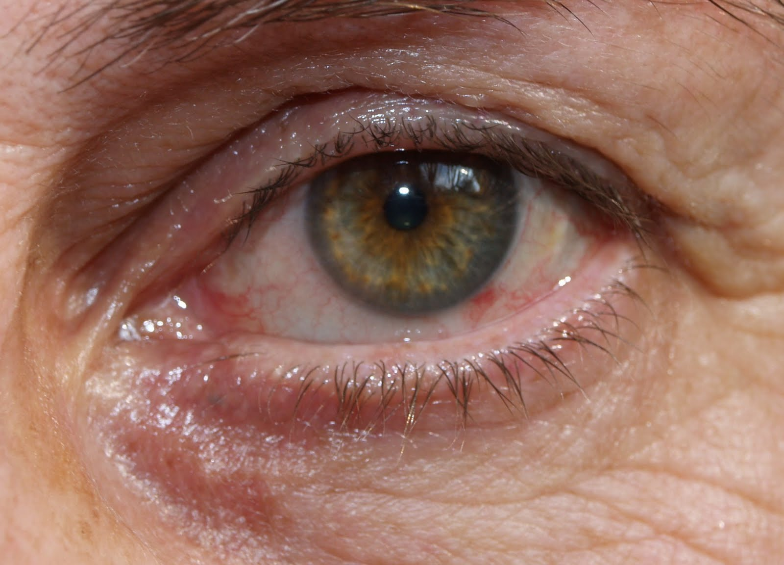 52b7db45c19fff Ellie s ogen  glasvochttroebelingen   vitrectomie en later  staar