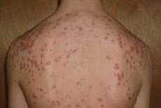 وصفة الحلبة والبابونج لعلاج و إزالة النمش Recipe fenugreek and chamomile for treating and remove freckles