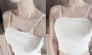 3 hari sesudah operasi payudara artis Korea