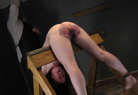 severe spanking bruises