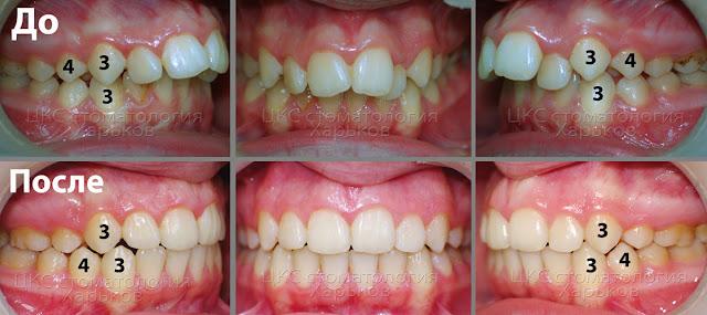 Фото прогнатического прикуса до лечения и ортогнатического прикуса после лечения брекетами