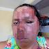 Mulher exibe marcas de acidente que deixou família inteira ferida, em Conceição