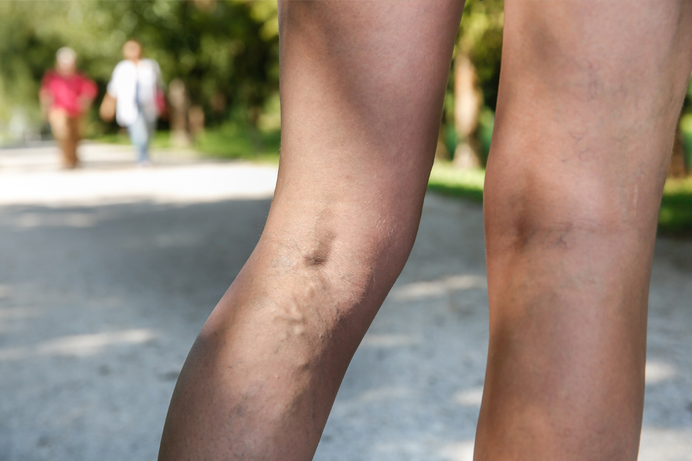 woman with varicose veins at the park