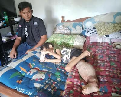 MSR-ACT Lampung Dampingi Naufal Sembuh dari Tumor Kaki