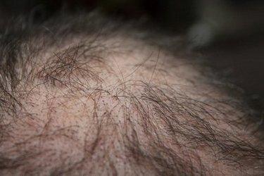 Penggunaan pengecap buaya dilakukan semoga memperoleh manfaat kesehatan Tumbuhan Berkhasiat  28 Manfaat Lidah Buaya: Untuk Kesehatan, Rambut, Kulit, Pengobatan, dll
