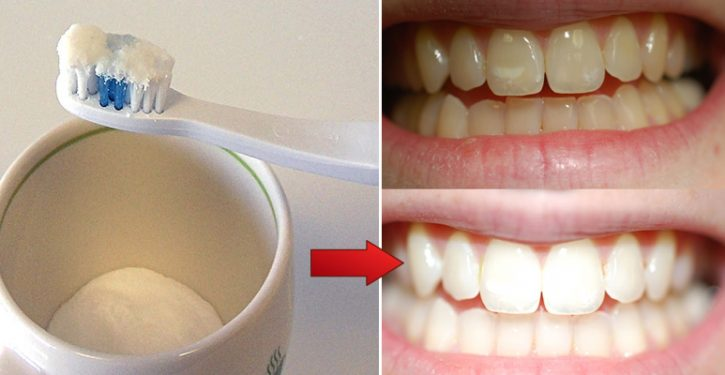 A Powerful Trick To Have White Teeth. Unbelievable !