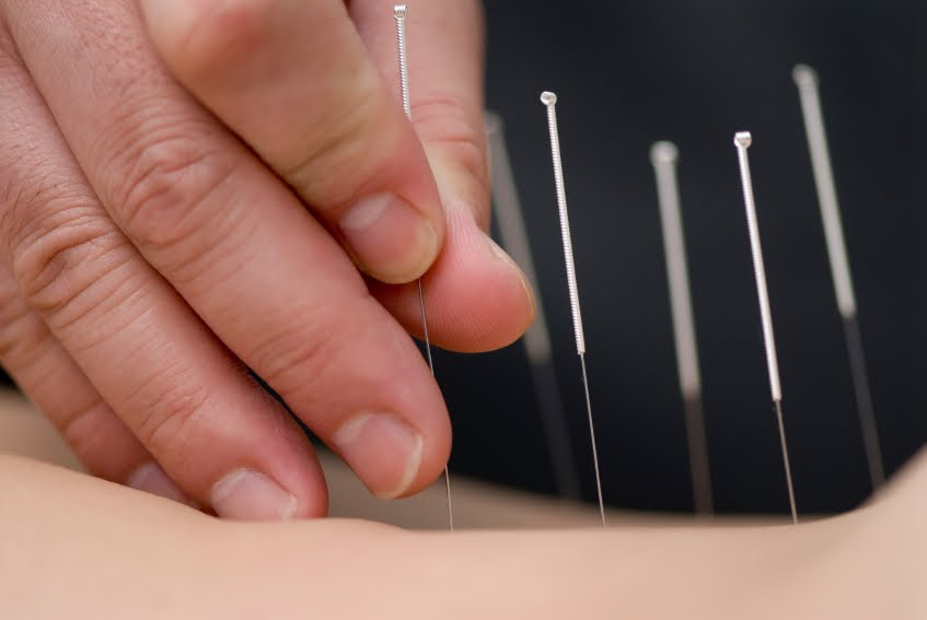 TOP 10 SITES...AND THE BEST: acupuncture ankle arthritis ...