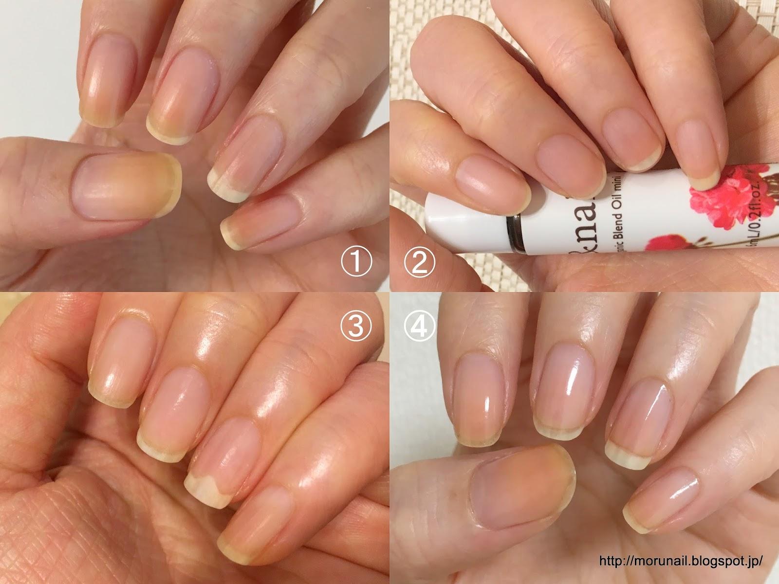 Moru\u0027s nails (実証)やっぱり爪を伸ばしたほうがネイルベッド