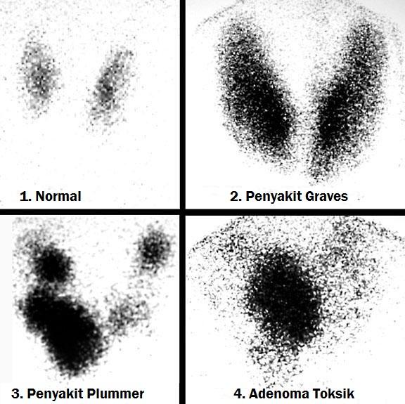 Skintigrafi nuklir Iodin 123 (123I): Scan 123I dari tiroid normal (1) dan kondisi hipertiroid yang umum terjadi pada kelenjar tiroid dengan uptake radioiodin yang meningkat, diantaranya penyakit Graves (2), Goiter toksik multinoduler (3), dan Adenoma toksik (4), radiologi, ilmu penyakit dalam, pencitraan kedokteran, praktikum, ppds, residen rumah sakit, koass, koas, kontras iodin