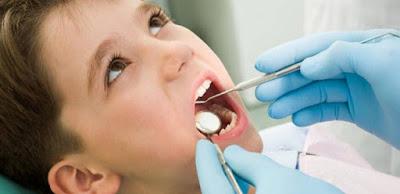 Tips Merawat Gigi Berlubang Pada Anak