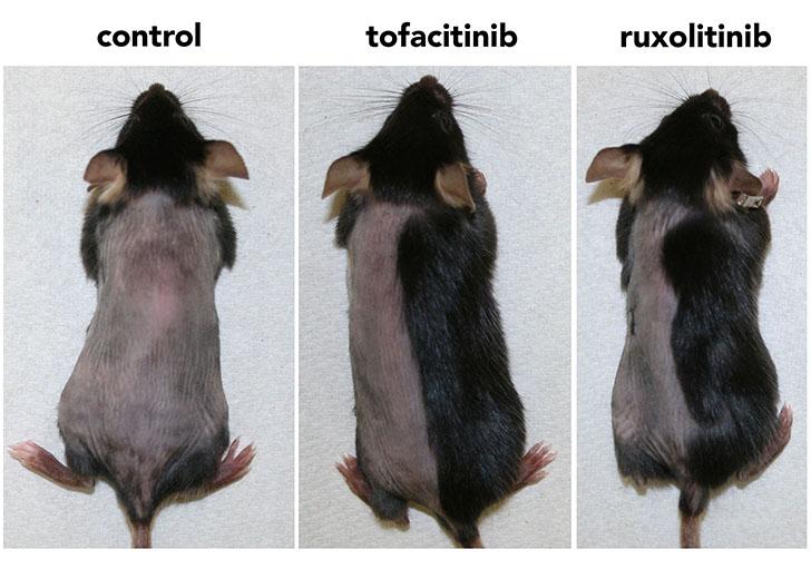 Mice Test Janus kinase Hair Regrowth Study Columbia University