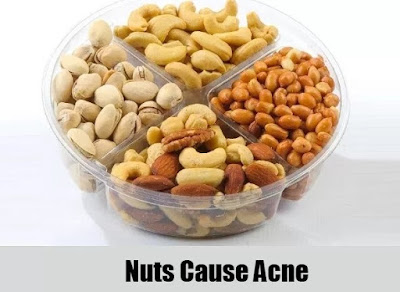 Do Peanuts Cause Acne ?