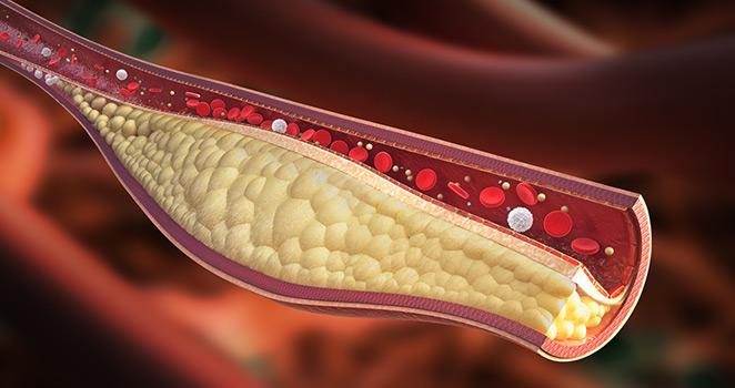 Obat Kolesterol Alami Di Apotik