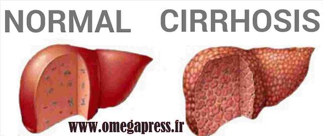 Cirrhoses du foie :Causes,Signes et symptômes,Diagnostic