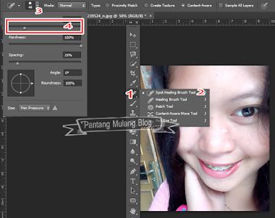 Cara Menghilangkan Jerawat Menggunakan Photoshop