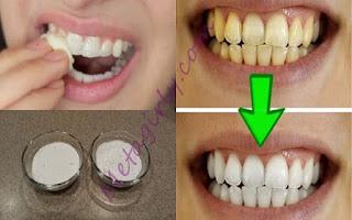 Εγγυημένο! Πώς να λευκάνετε τα δόντια σας σε λιγότερο από 2 λεπτά!