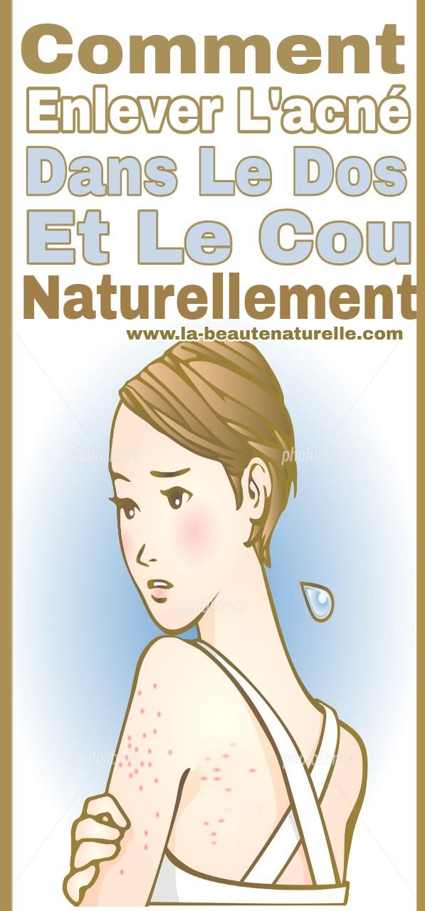 Comment enlever l'acné dans le dos et le cou naturellement